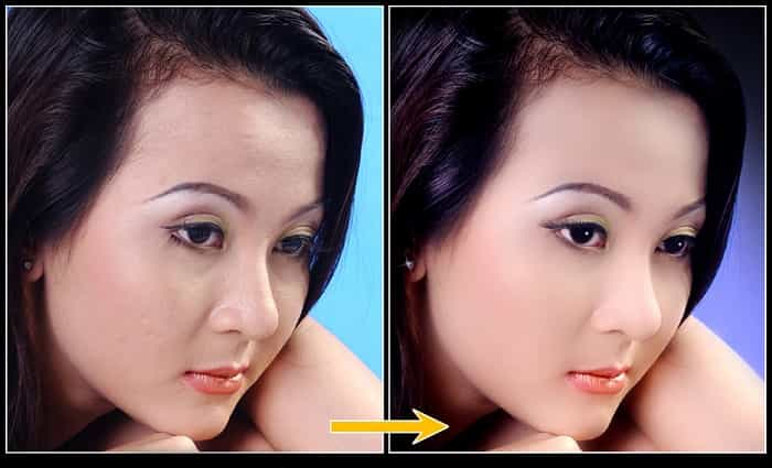 bài tập chỉnh sửa da mặt